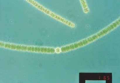 Cyanobacteria: Anabaena solitaria ~ the organism associated with geosmin in Theewaterskloof